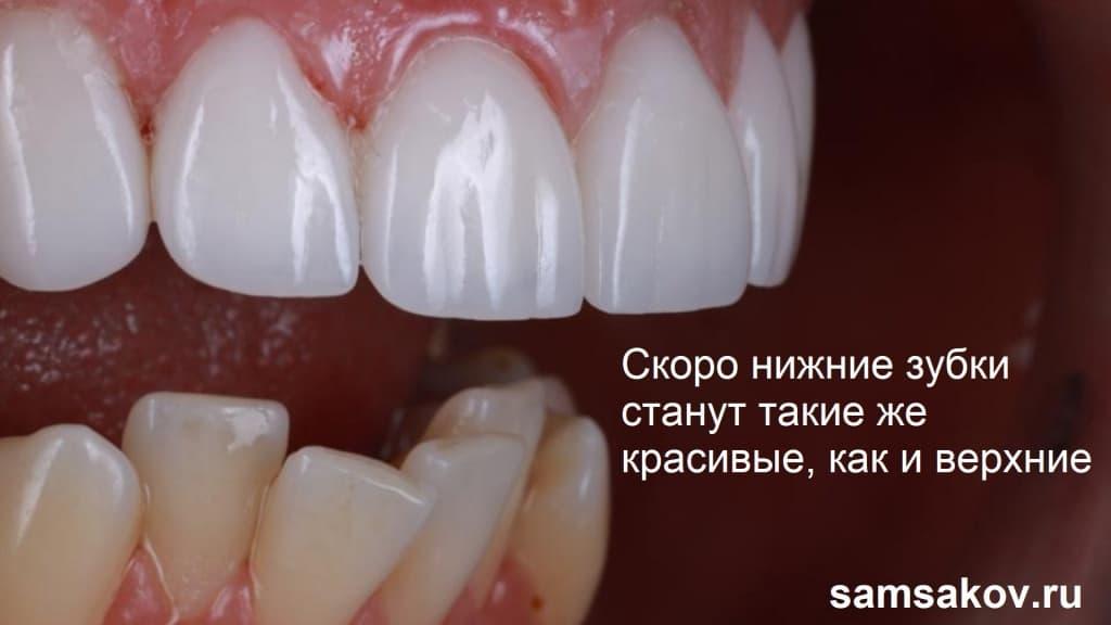 Можно ли установить виниры на кривые зубы