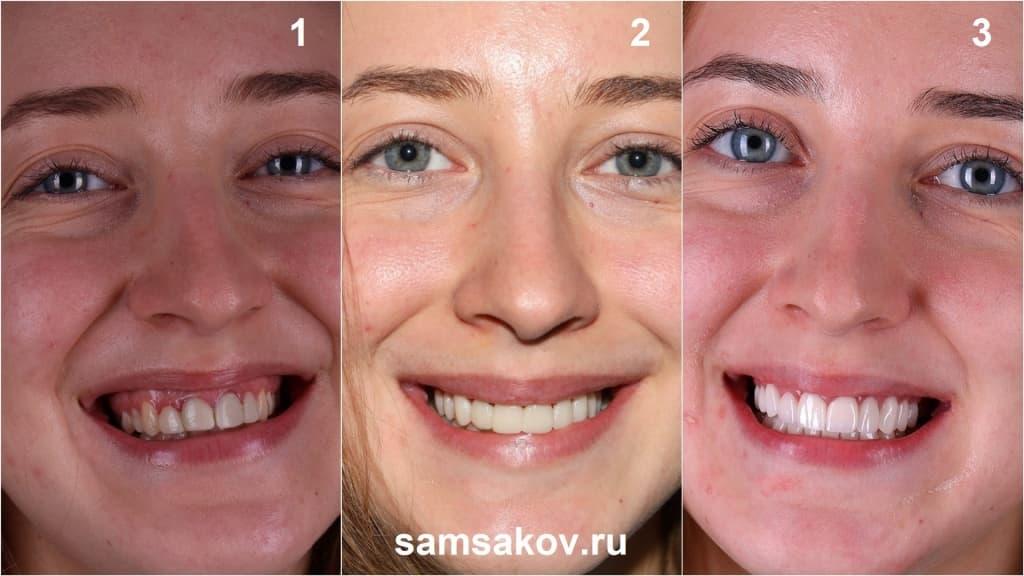 Этапы преображения улыбки