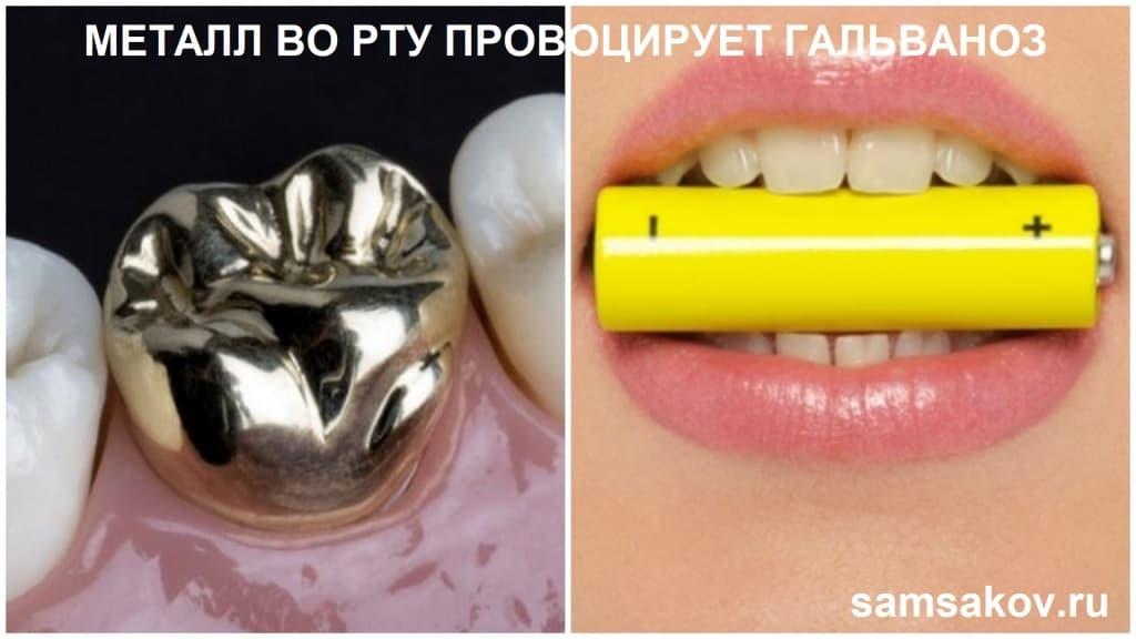 Гальваноз в полости рта часто образуется по причине металлических коронок или протезов