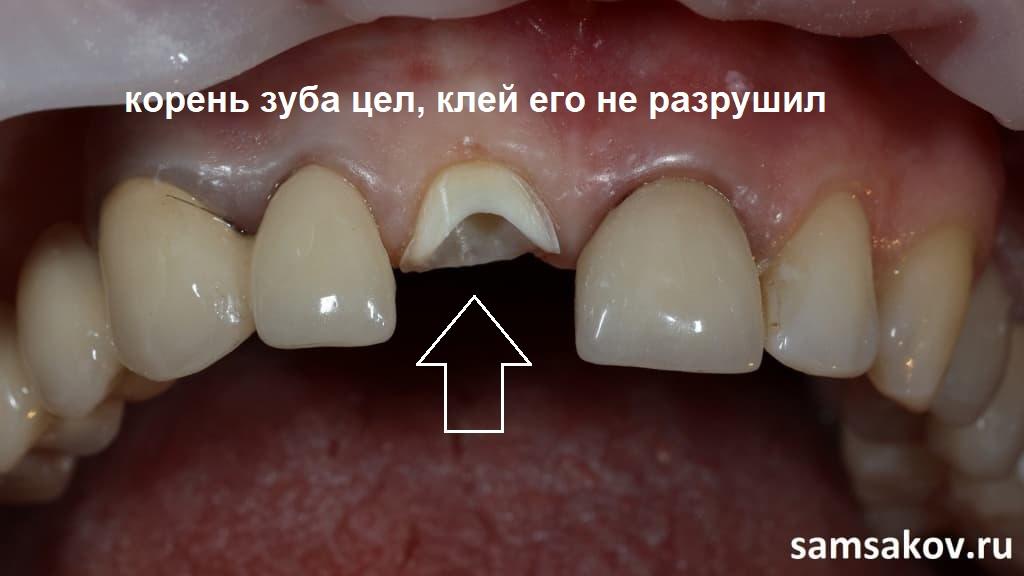Фото переднего обточенного зуба под корень