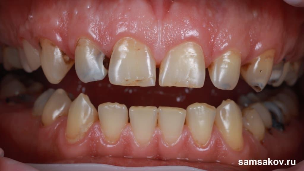 Зубы поражены кариесом буквально до корней
