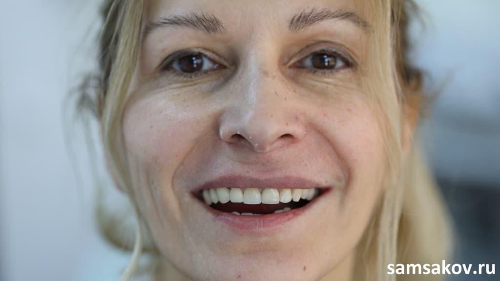 Фото после восстановления корня переднего зуба