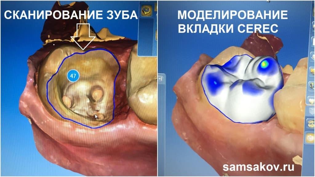 Удаление нижнего 7 корня зуба не потребовалось, технология Cerec опять оказалась на высоте