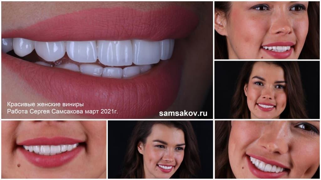 Так выглядят женские виниры Luxury. Работа ортопеда Сергея Самсакова, март 2021 года