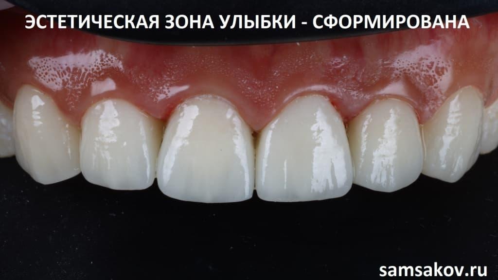 Восстановленный верхний ряд передних зубов