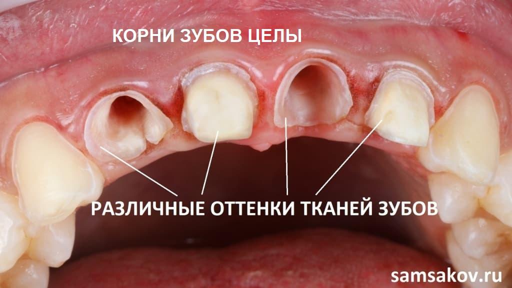 От двух передних зубов-резцов остались только корни