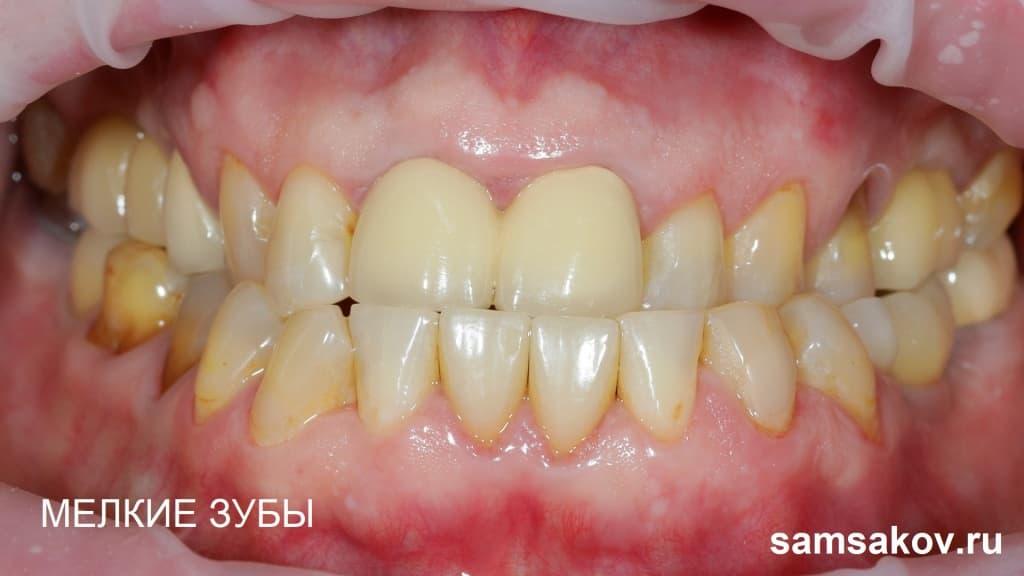 Виниры помогают тогда, когда фронтальные зубы слишком мелкие или неравномерны по величине, портят внешность