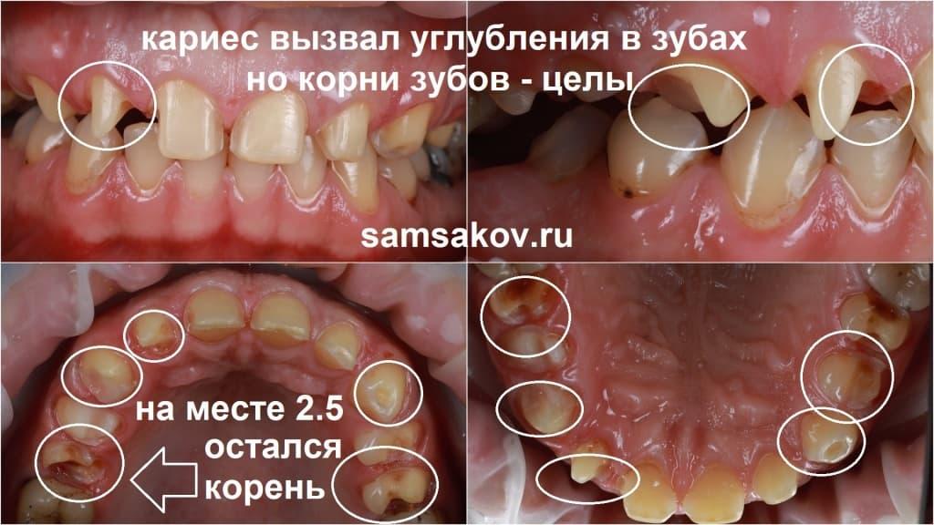 После снятия кариозного слоя остатки зубов предстали в таком виде