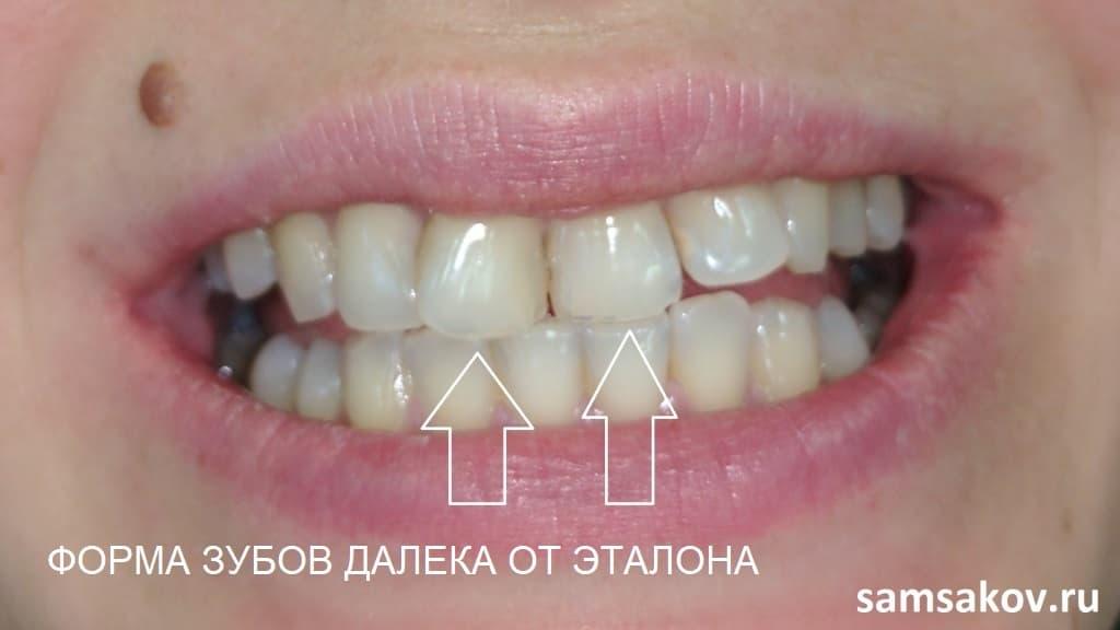 Виниры помогают тогда, когда форма зуба далека от эталона