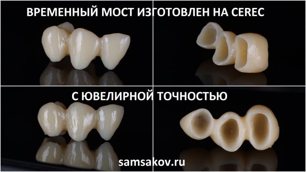 В общем, получилось, как ногти шеллак, только круче, с гораздо более высокой износоустойчивостью. Изготовление зубного моста CEREC на верхнюю челюсть.