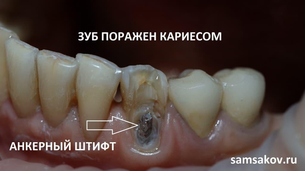 Как можно наблюдать на фотографии, внутри зуба был установлен анкерный штифт
