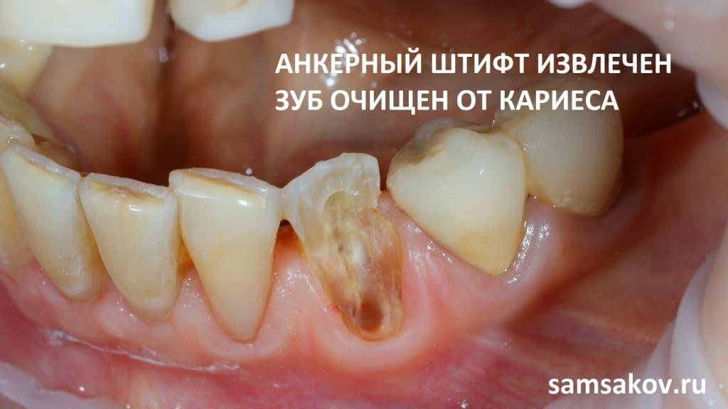 от зуба остался только корень и небольшая часть стенки