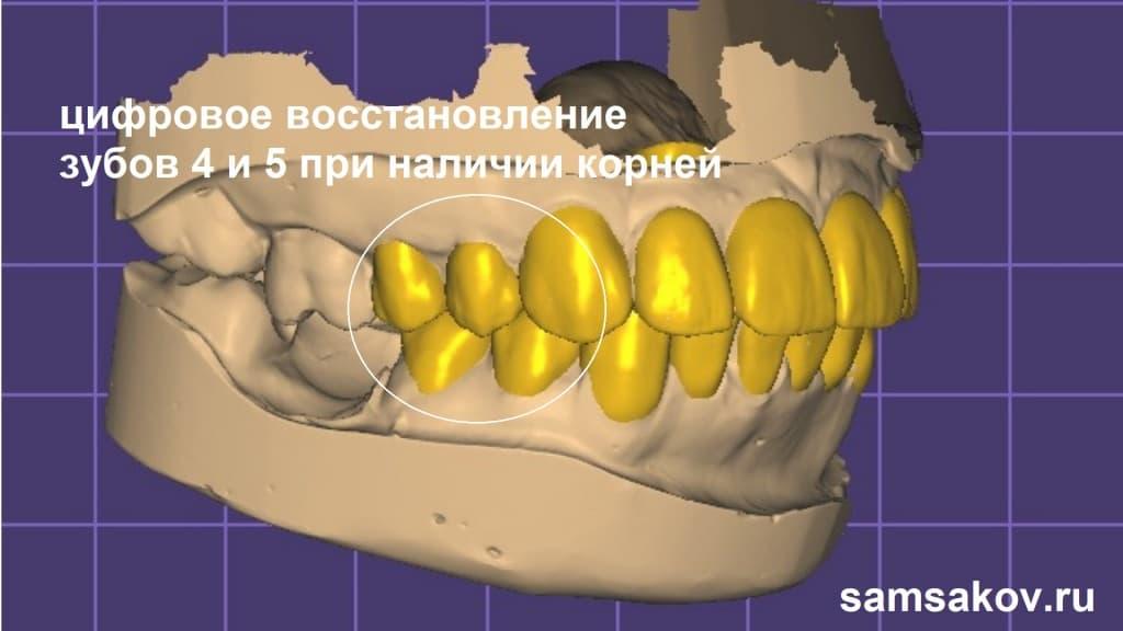 С помощью компьютерных технологий и 3D сканирования сначала мы восстановили виртуальные зубы