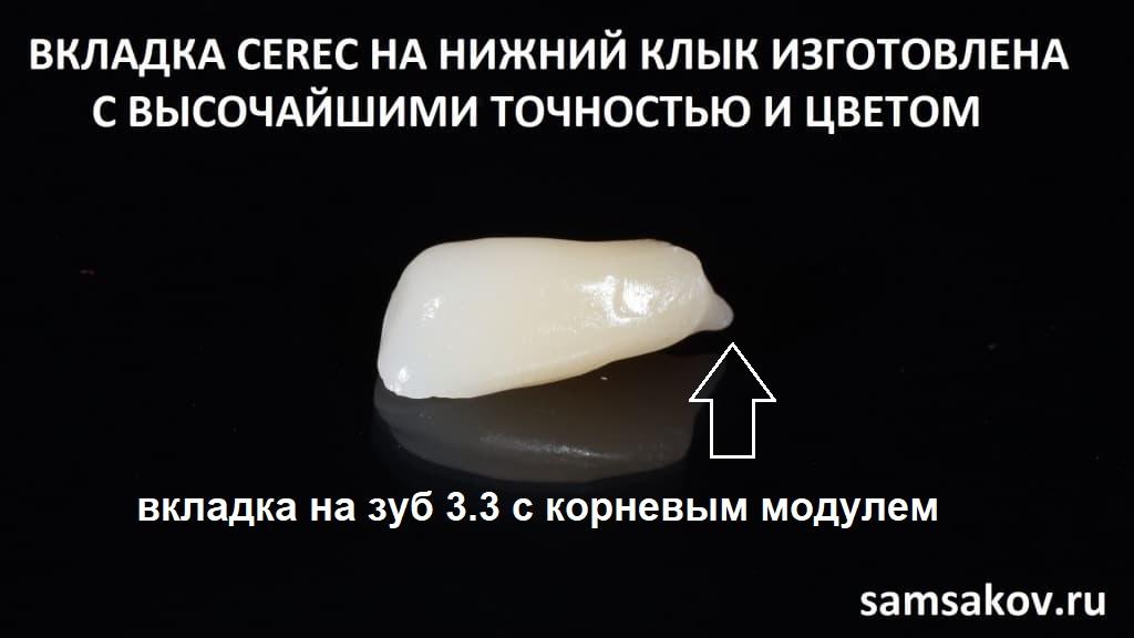 мы восстановили недостающий модуль зуба, включающий в себя также и корневую часть