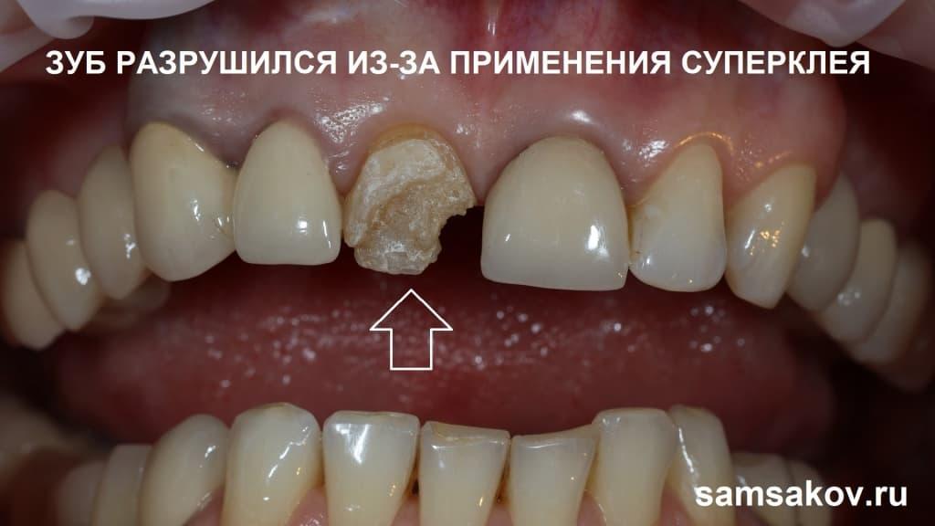 Фото разрушенного клеем зуба