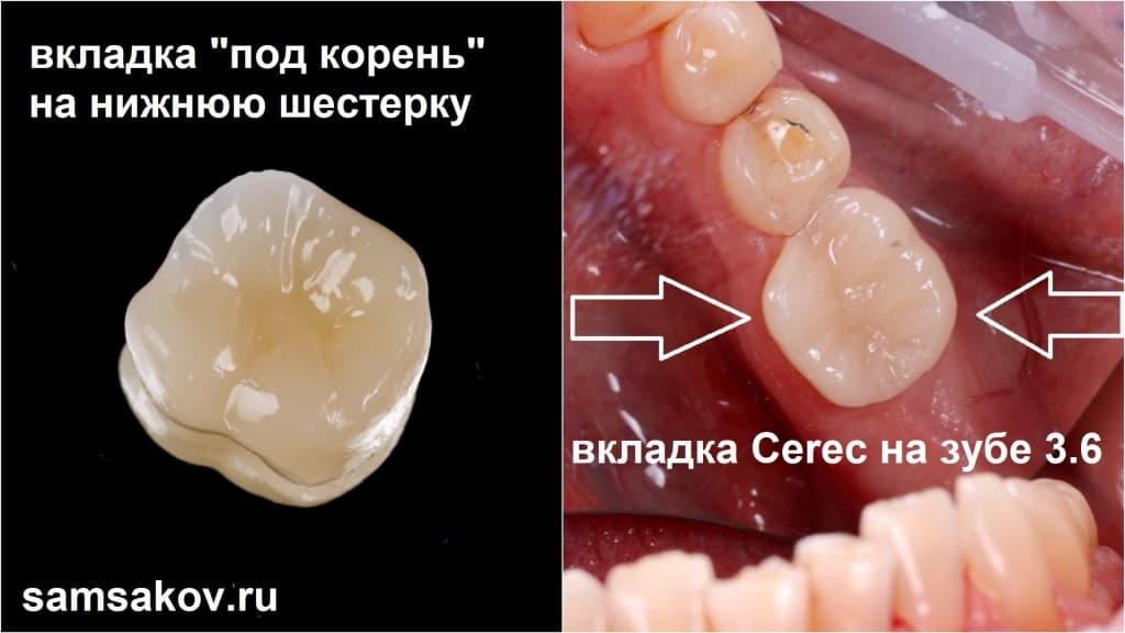 Зуб 6 был восстановлен буквально из одного корня за 1,5 часа по технологии Cerec